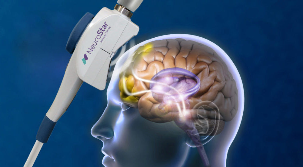About TMS - Neurosciences Clinics